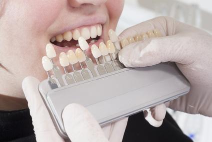 Veneers - Zahnarzt dr le coutre