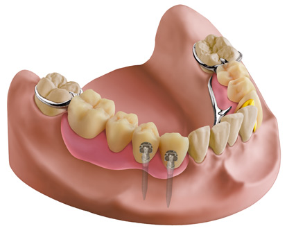 Teilprothese-mit-Mini-Implantaten