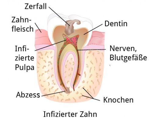 infezierterZahn-1
