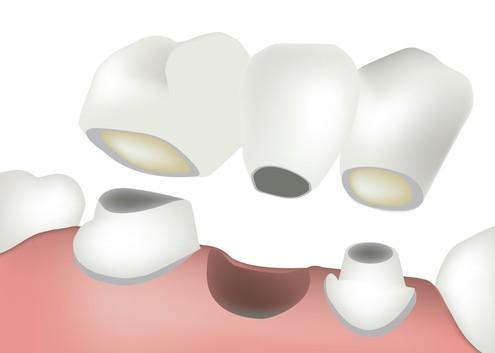 Kroen und Brücken  - Zahnarzt le Coutre