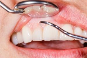 Zahnrenigung und Zahnfleischbluten - dr le Coutre