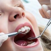 Zahnreinigung für Kinder - dr le Coutre
