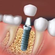 Implantatillustration