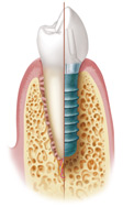titanium Implantat