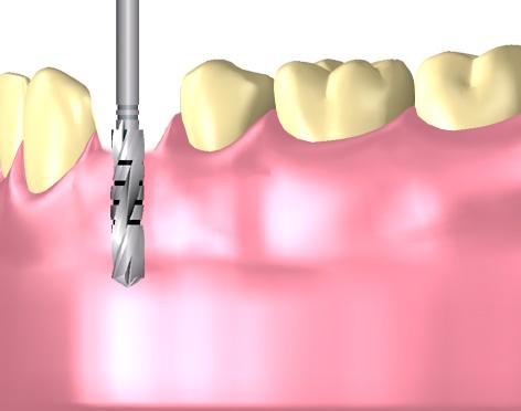 Implantatsetzung